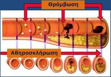 Αθηροσκλήρωση - Προοδευτική Διαδικασία που Οδηγεί στην Ανάπτυξη της Αθηρωματικής Πλάκας στο Αρτηριακό τοίχωμα