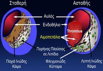 Αθηροθρόμβωση: Σχηματισμός Θρόμβου στην Αθηρωματική Πλάκα ως Συνέπεια της Ρήξης της