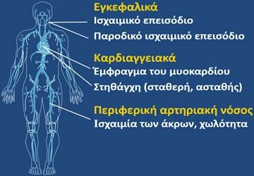 Κλινικές Εκδηλώσεις Αθηροθρόμβωσης